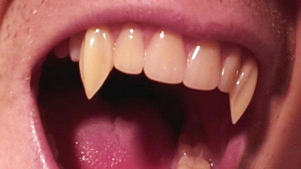 vampire-fangs-blood-groove1